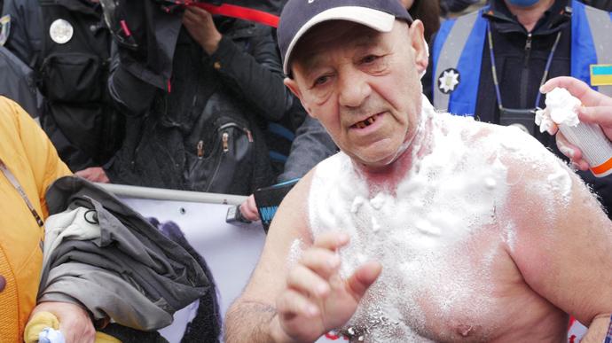 Чоловік підпалив себе на мітингу проти Авакова у Києві (+ФОТО)